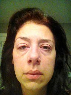 Cімптоми захворювання нирок