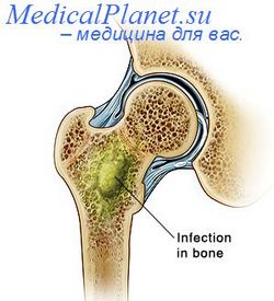 Гематогенний остеомієліт у дітей