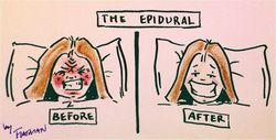 Епідуральна анестезія - наслідки