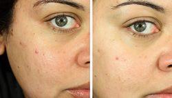 Як робити хімічний пілінг шкіри обличчя?