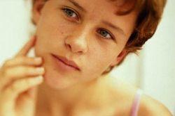 Прищі у вухах: причини і лікування
