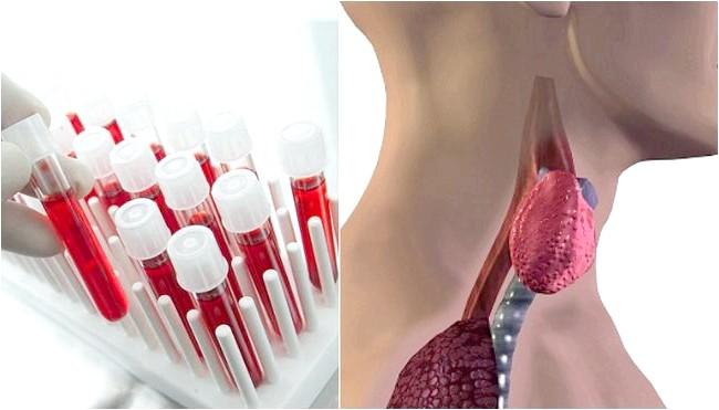 Фото - Аналіз крові на гормони щитовидної залози