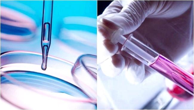 Фото - Аналіз крові на гормони надниркових залоз