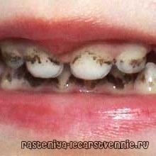 Причини нальоту на зубах у дитини