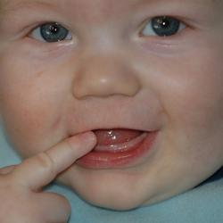 Зуби у немовлят. коли починають різатися зубки?