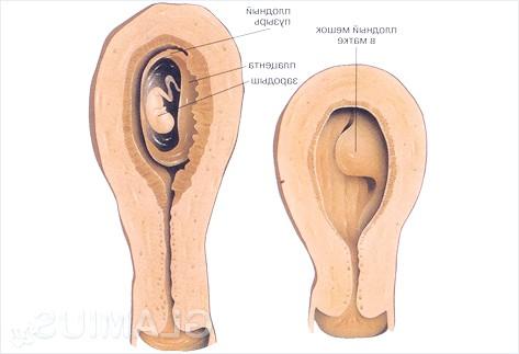 Фото - Імплантація зародка