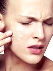 Хвороби шкіри обличчя