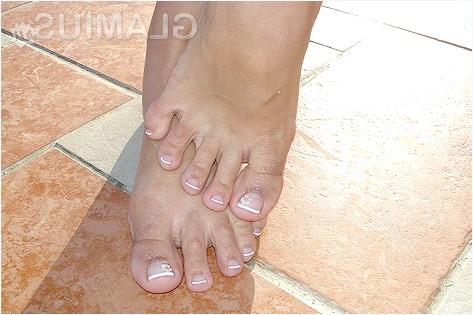 Лікування грибка нігтів народними засобами