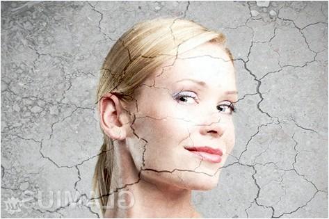 Лікування псоріазу в домашніх умовах