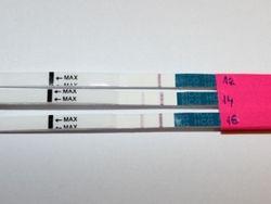 Рівень ХГЛ при позаматкової вагітності